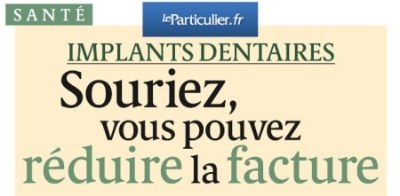 article prix implant dentaire
