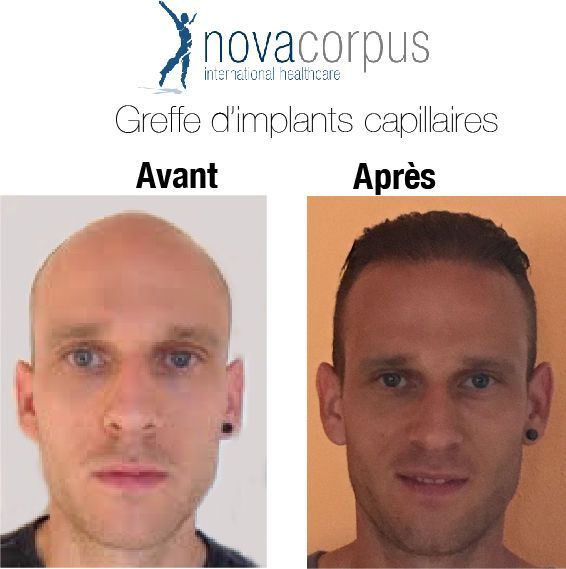 Photos Avant Apres Greffe D Implants Capillaires Novacorpus